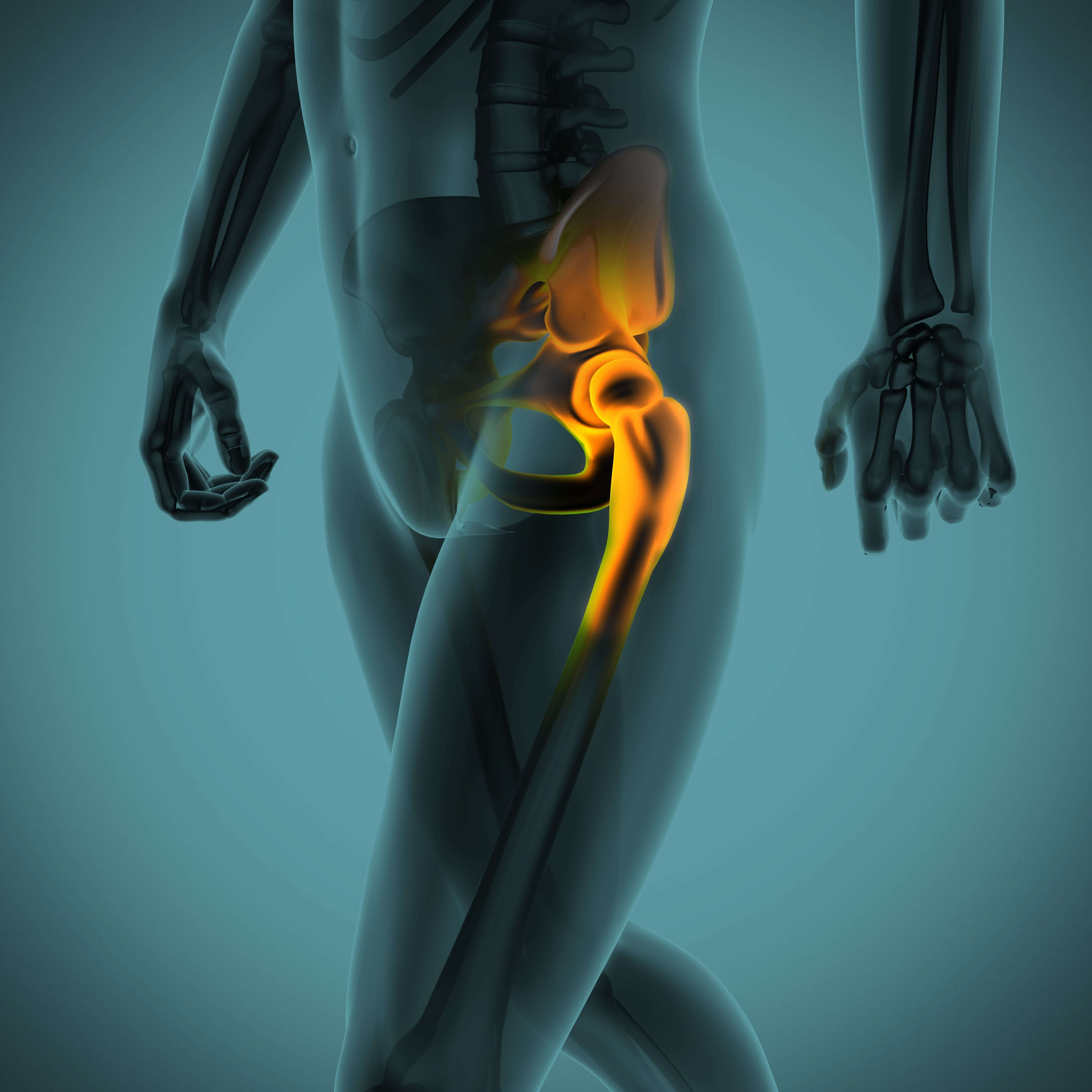 Hip Arthroplasty Surgery Image